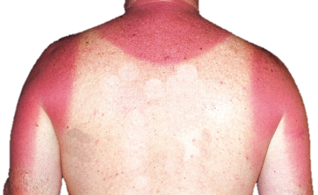 Boat safety: sunburn